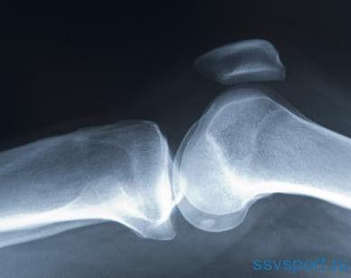 мениск коленного сустава - лечение без операции